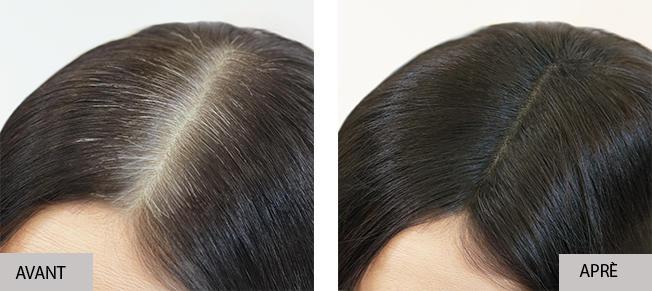 Correction des repousses avec Insta Recharge, avant et après